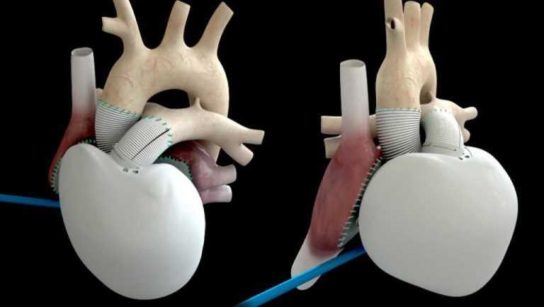 Jornal Campeão: Saúde: Implantado primeiro coração artificial em Portugal
