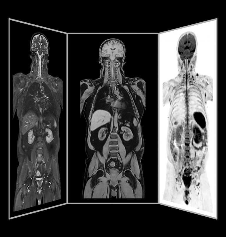 Jornal Campeão: Coimbra: Hospital da Luz com ressonância magnética de corpo inteiro